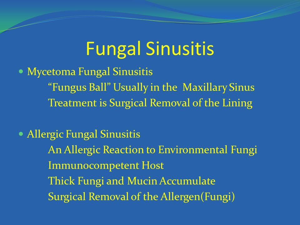 Fungal Sinusitis Mycetoma Fungal Sinusitis