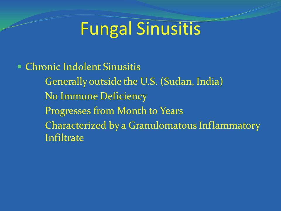 Fungal Sinusitis Chronic Indolent Sinusitis