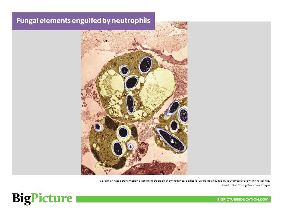 Fungal elements engulfed by neutrophils