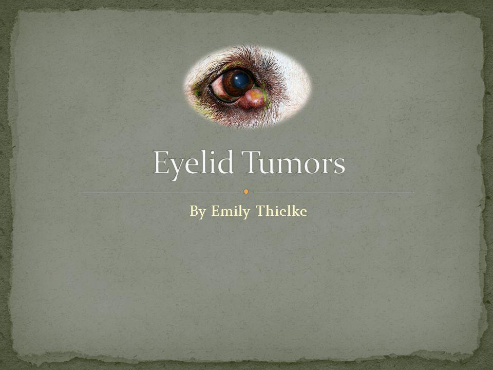 Eyelid Tumors By Emily Thielke