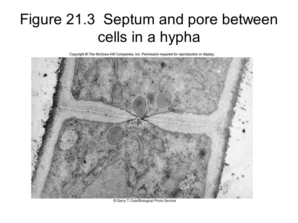 Figure 21.3 Septum and pore between cells in a hypha