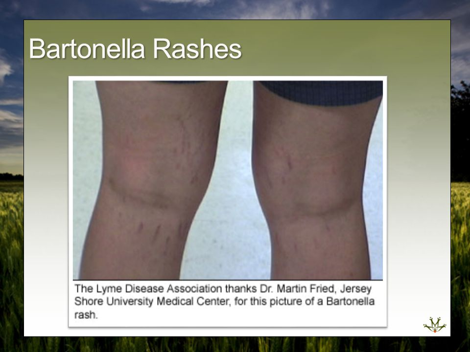 Bartonella Rashes