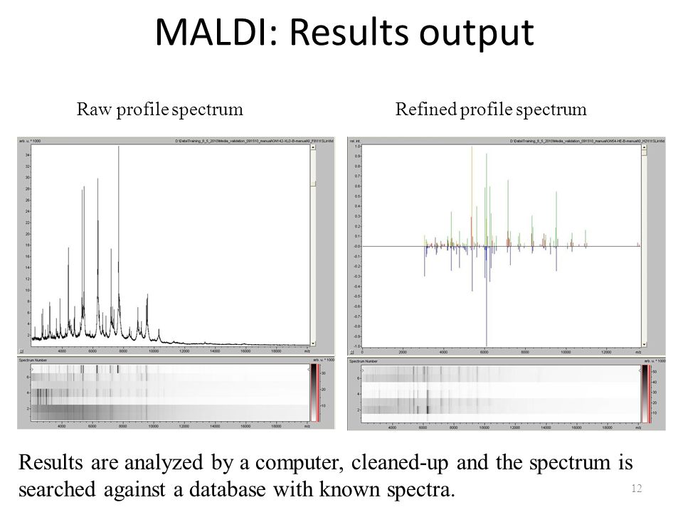MALDI: Results output Raw profile spectrum. Refined profile spectrum.