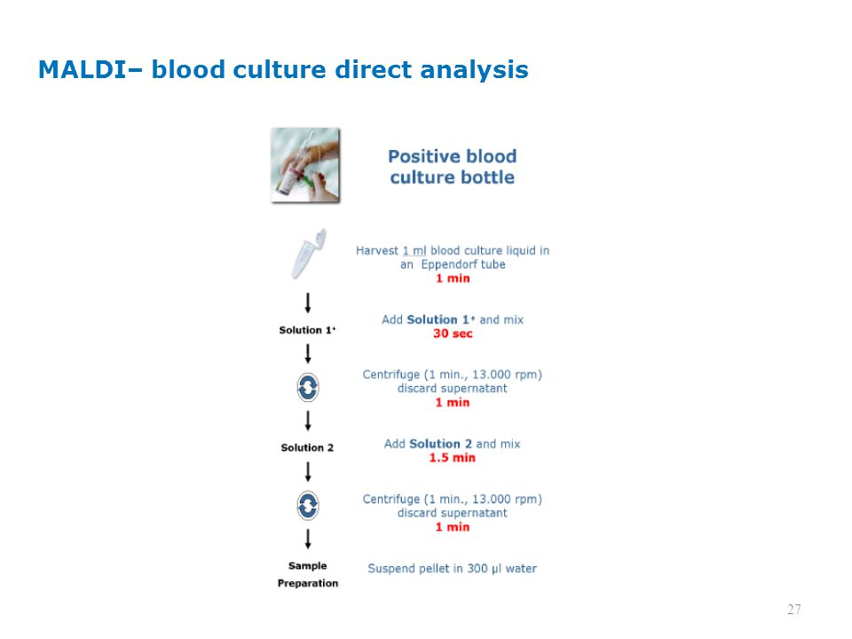 MALDI– blood culture direct analysis