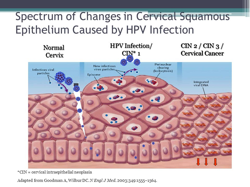 Spectrum of Changes in Cervical Squamous Epithelium Caused by HPV Infection