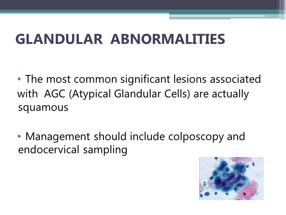 GLANDULAR ABNORMALITIES