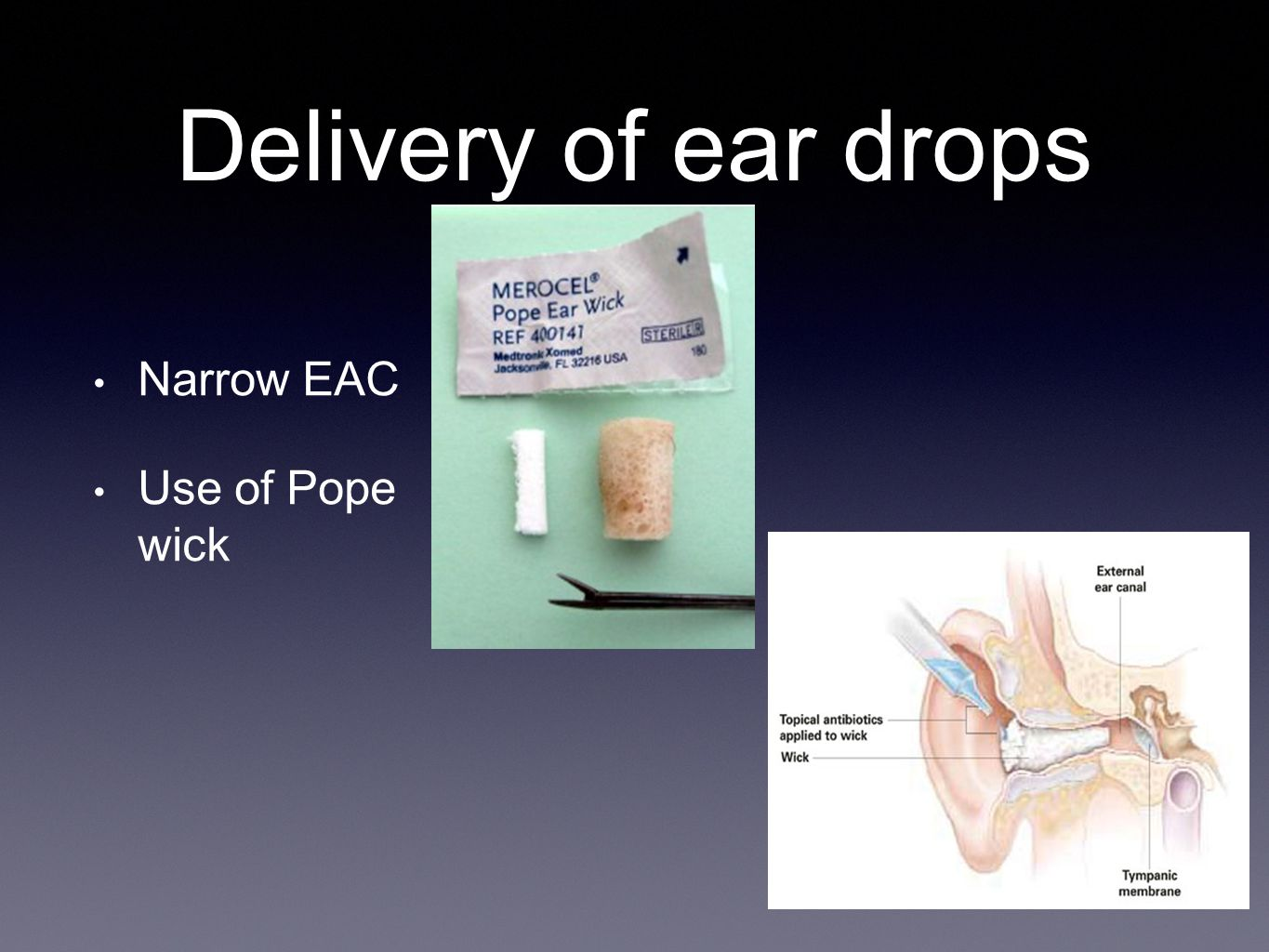 Delivery of ear drops Narrow EAC Use of Pope wick