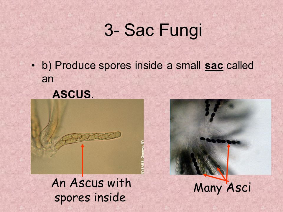 3- Sac Fungi An Ascus with Many Asci spores inside