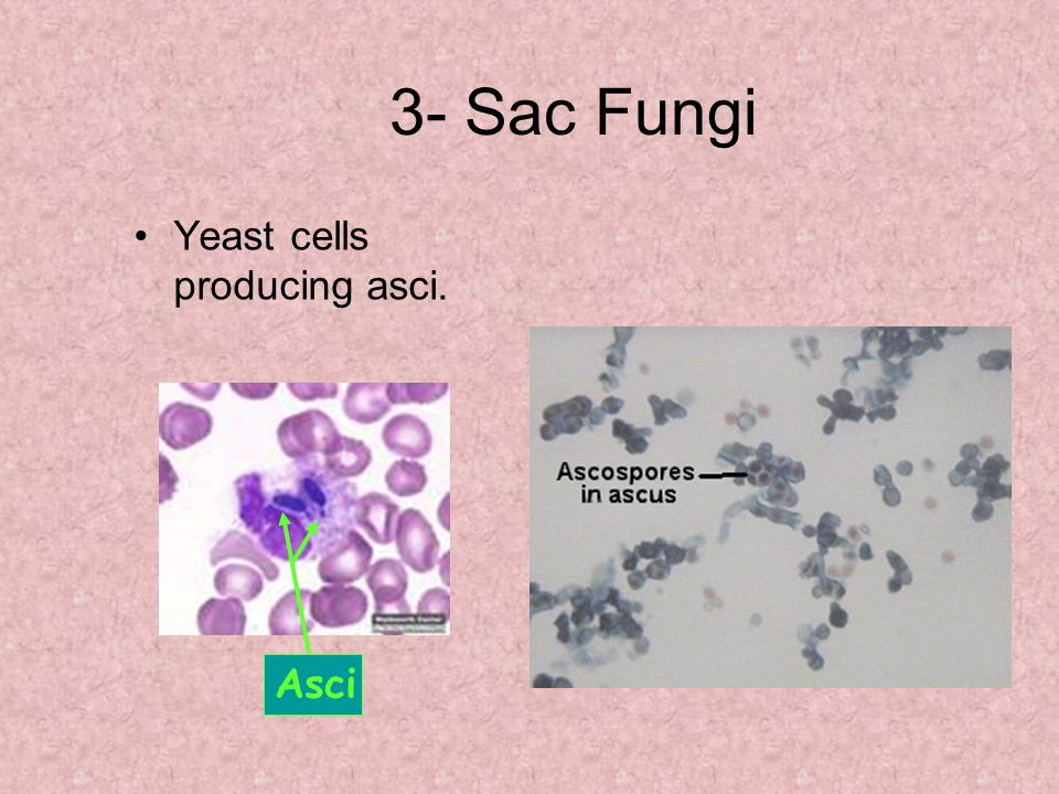 3- Sac Fungi Yeast cells producing asci. Asci