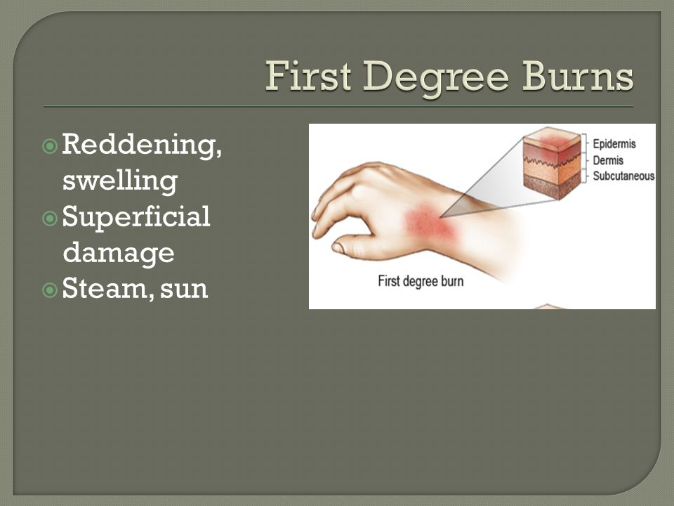First Degree Burns Reddening, swelling Superficial damage Steam, sun