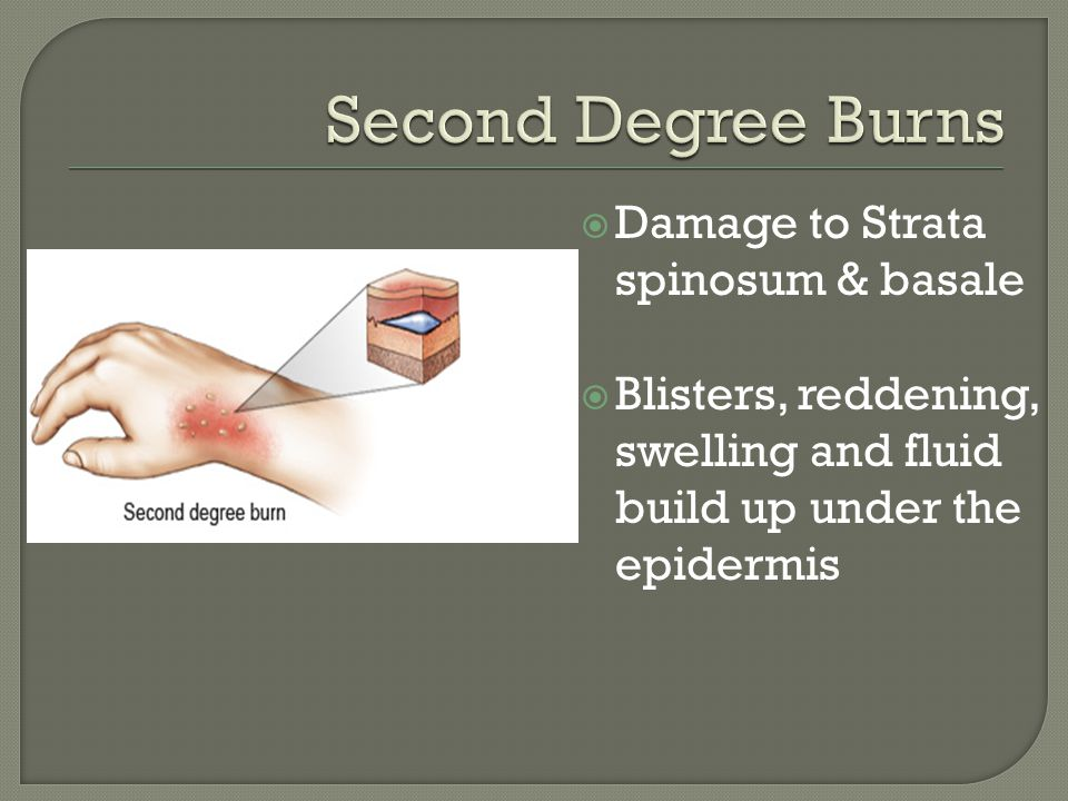 Second Degree Burns Damage to Strata spinosum & basale