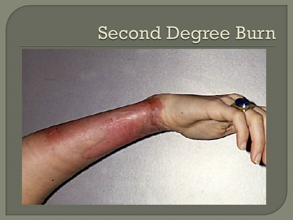 Second Degree Burn