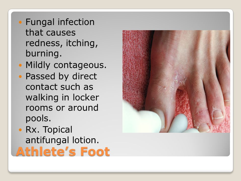 Athlete's Foot Fungal infection that causes redness, itching, burning.