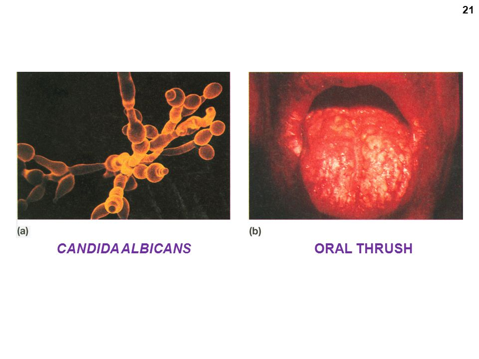 CANDIDA ALBICANS ORAL THRUSH