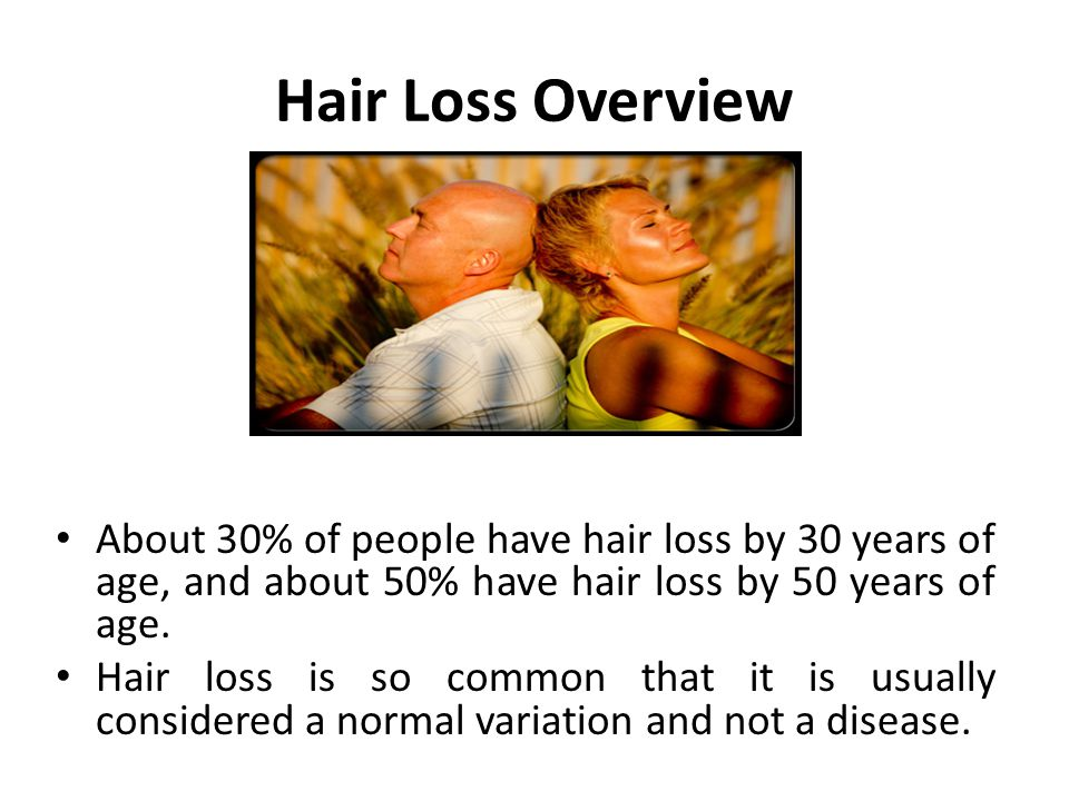 Hair Loss Overview About 30% of people have hair loss by 30 years of age, and about 50% have hair loss by 50 years of age.