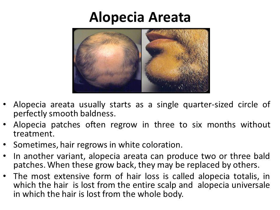 Alopecia Areata Alopecia areata usually starts as a single quarter-sized circle of perfectly smooth baldness.