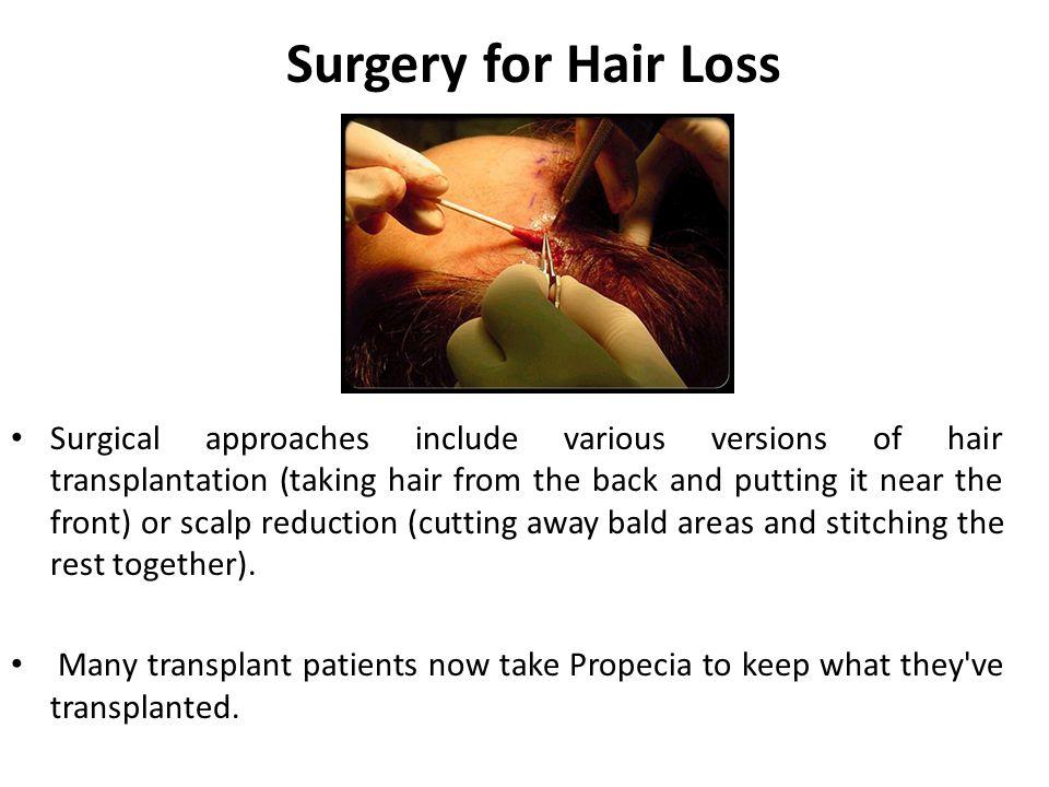 Surgery for Hair Loss
