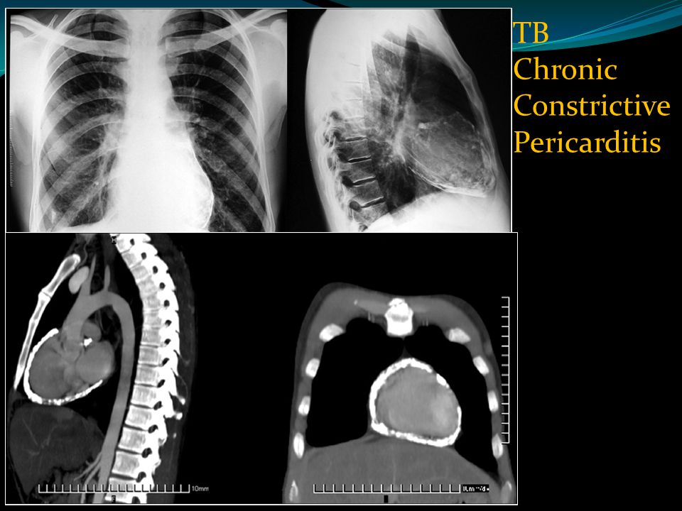 TB Chronic Constrictive Pericarditis