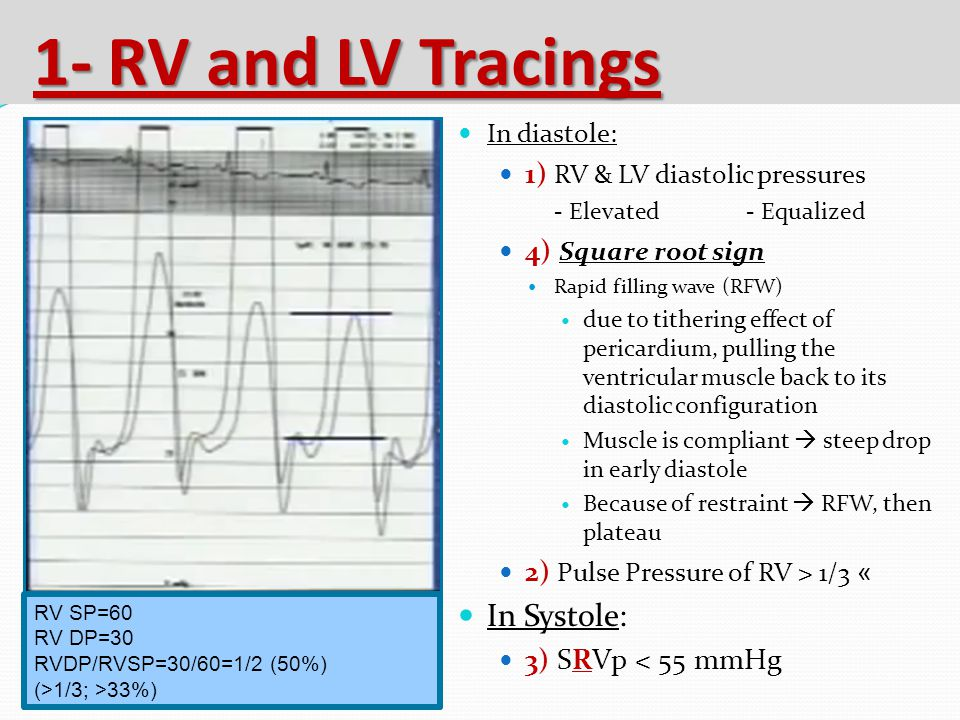 1- RV and LV Tracings In Systole: 1) RV & LV diastolic pressures