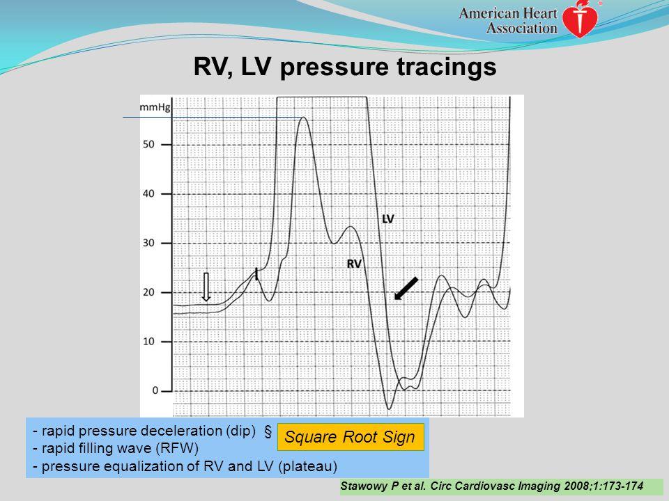 RV, LV pressure tracings