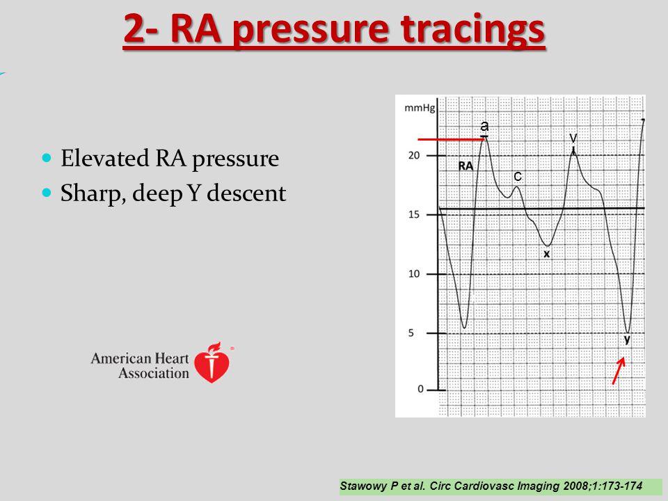 2- RA pressure tracings Elevated RA pressure Sharp, deep Y descent a v