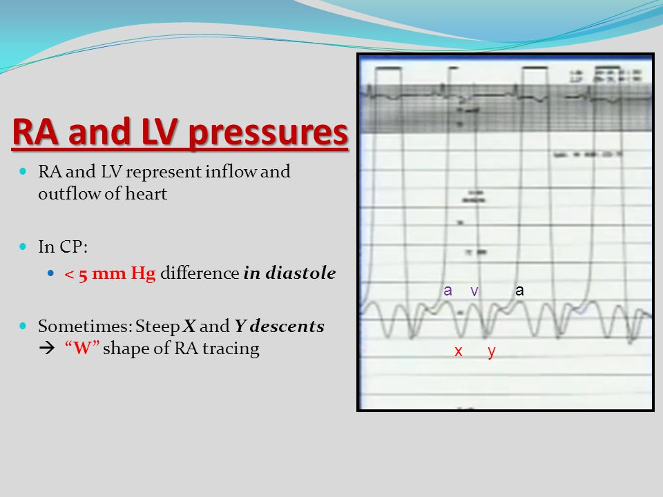 RA and LV pressures RA and LV represent inflow and outflow of heart