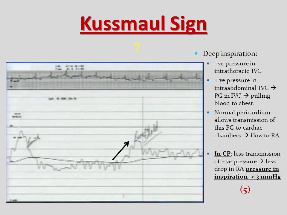 Kussmaul Sign (5) Deep inspiration: