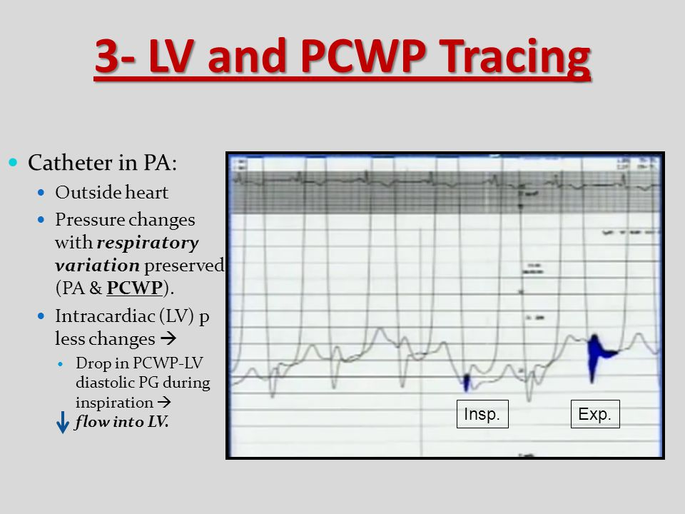 3- LV and PCWP Tracing Catheter in PA: Outside heart