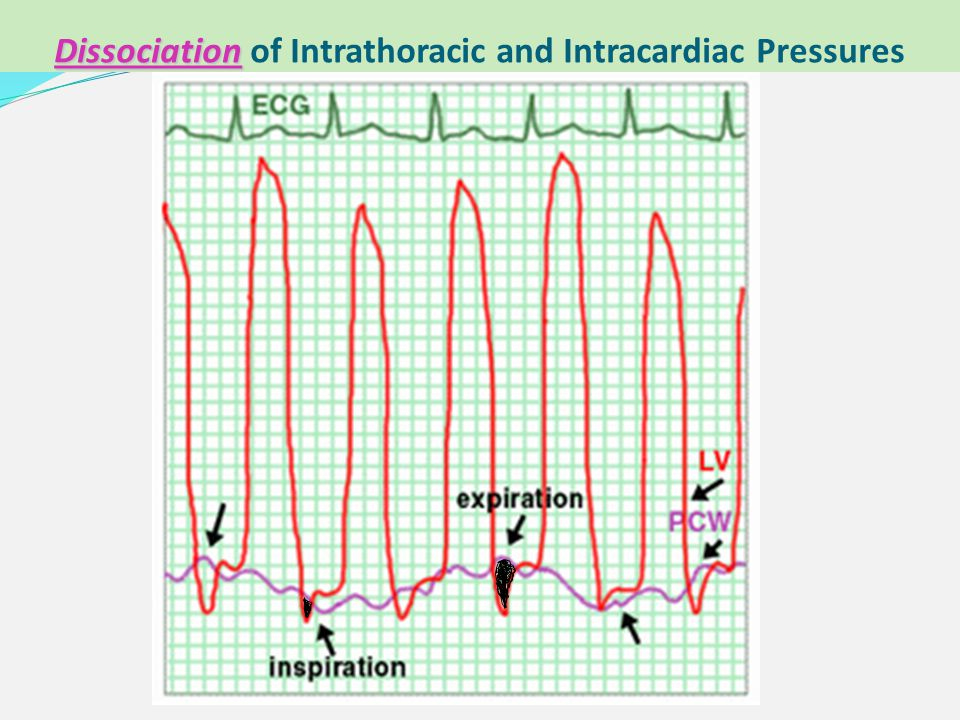 Dissociation of Intrathoracic and Intracardiac Pressures