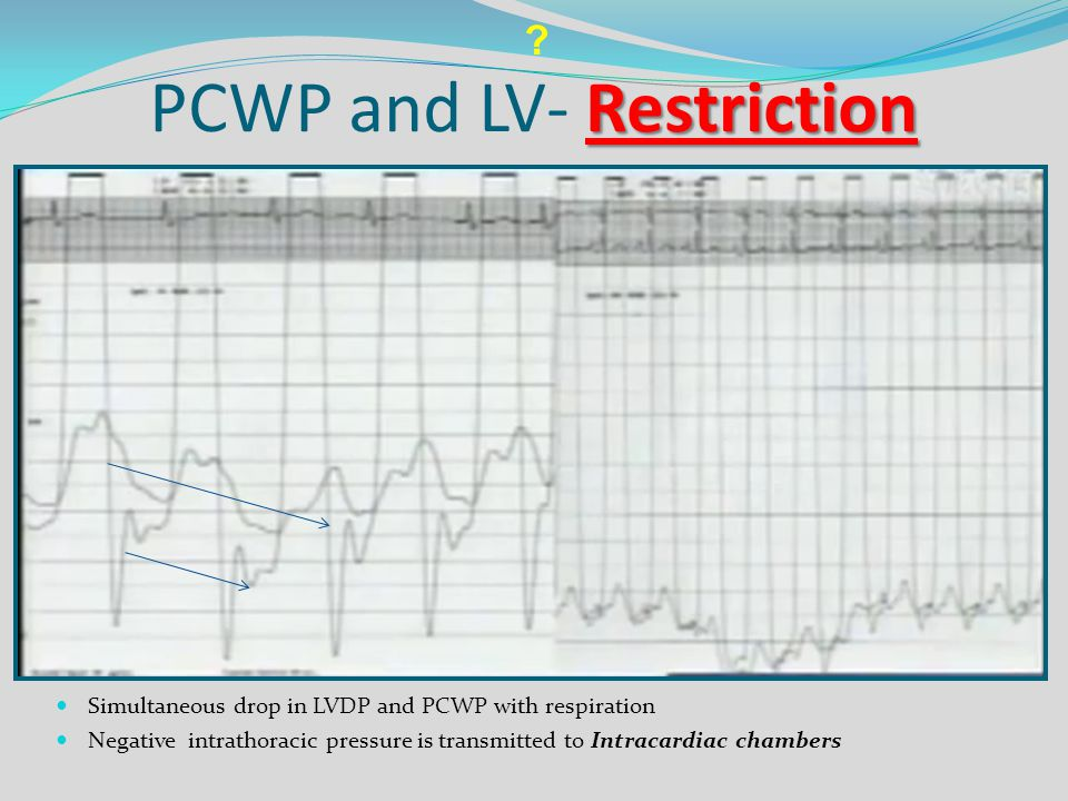 PCWP and LV- Restriction