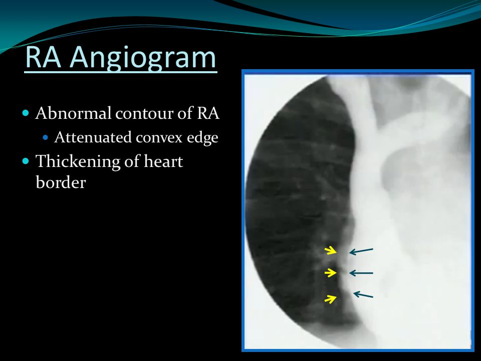 RA Angiogram Abnormal contour of RA Thickening of heart border