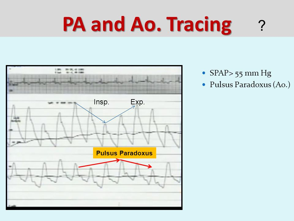 PA and Ao. Tracing SPAP> 55 mm Hg Pulsus Paradoxus (Ao.) Insp.