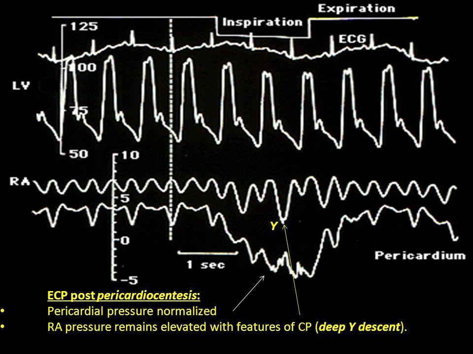 ECP post pericardiocentesis: Pericardial pressure normalized