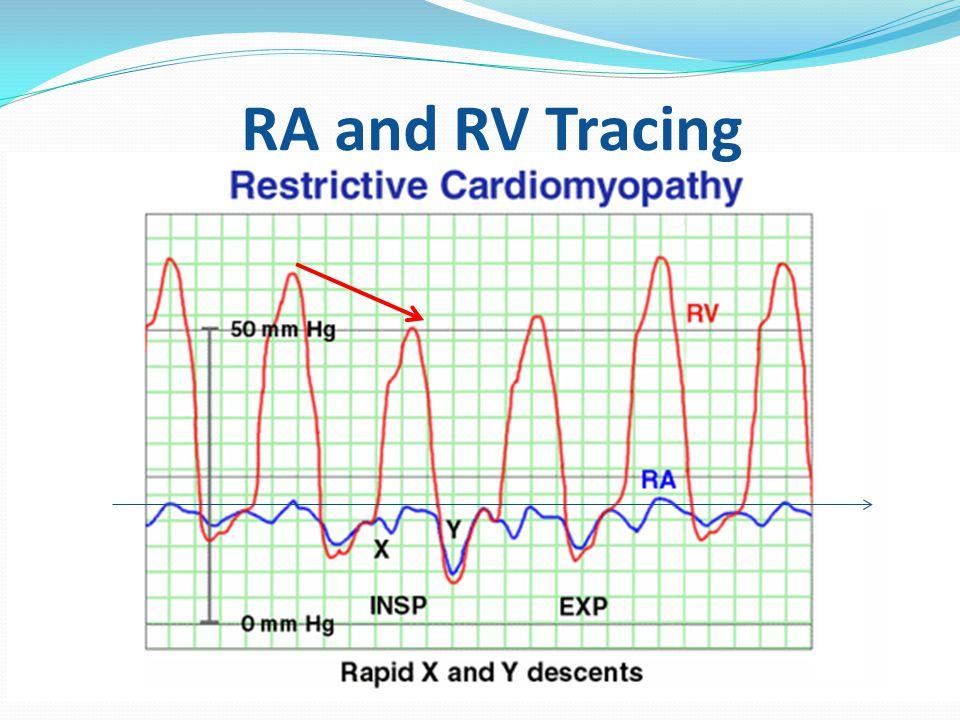 RA and RV Tracing