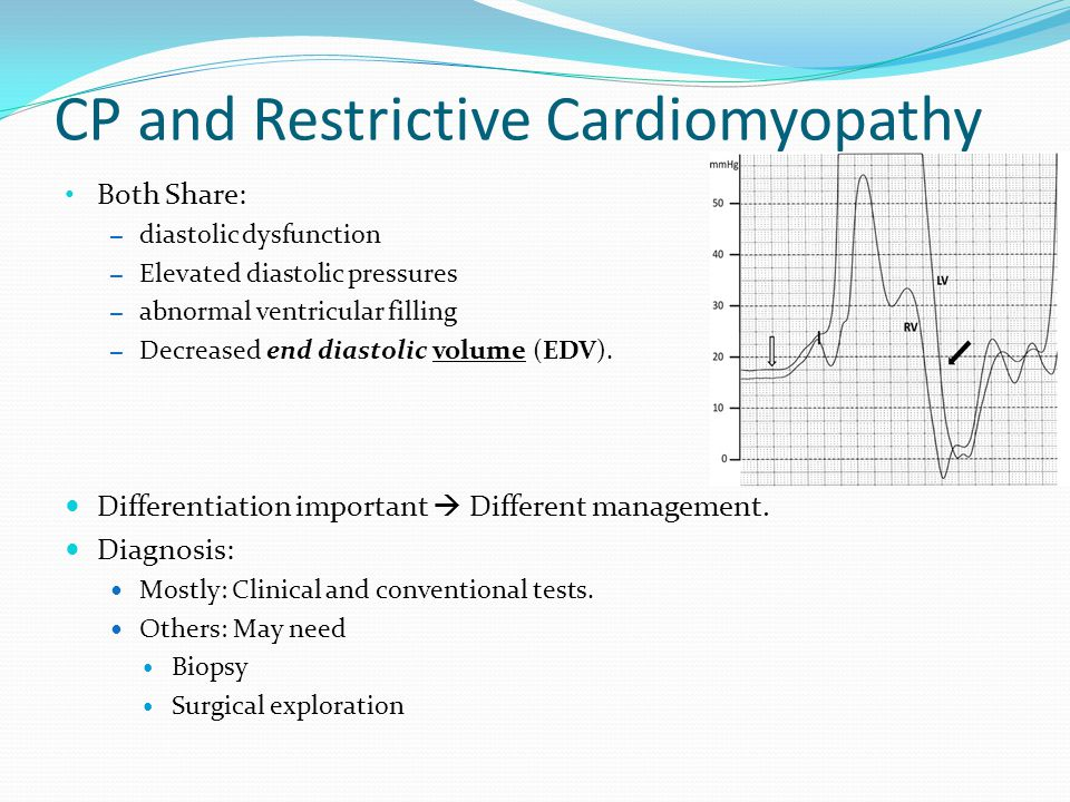 CP and Restrictive Cardiomyopathy