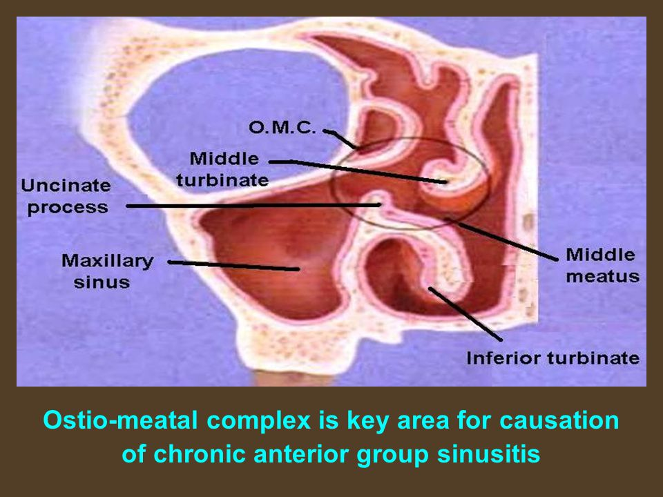 Ostio-meatal complex is key area for causation