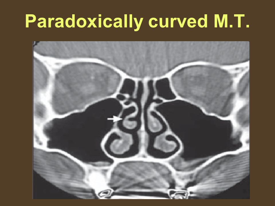 Paradoxically curved M.T.