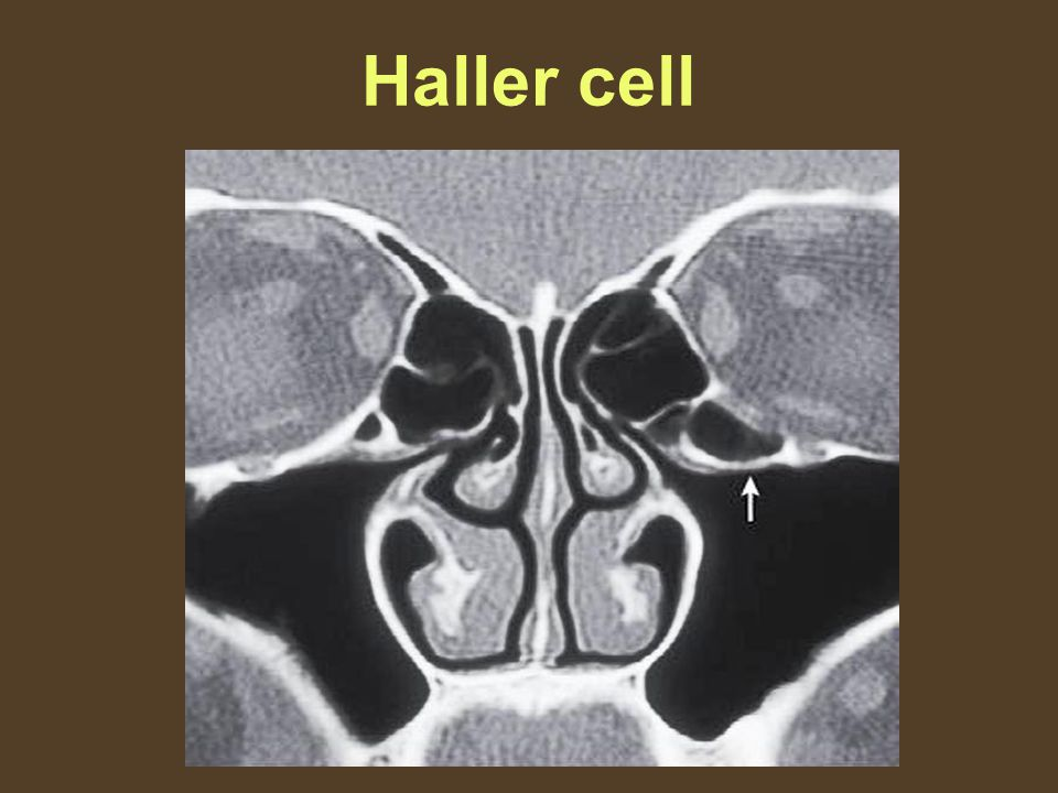 Haller cell