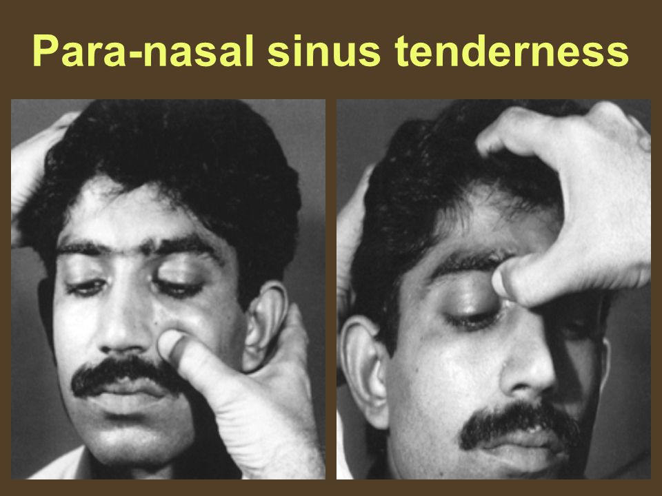 Para-nasal sinus tenderness
