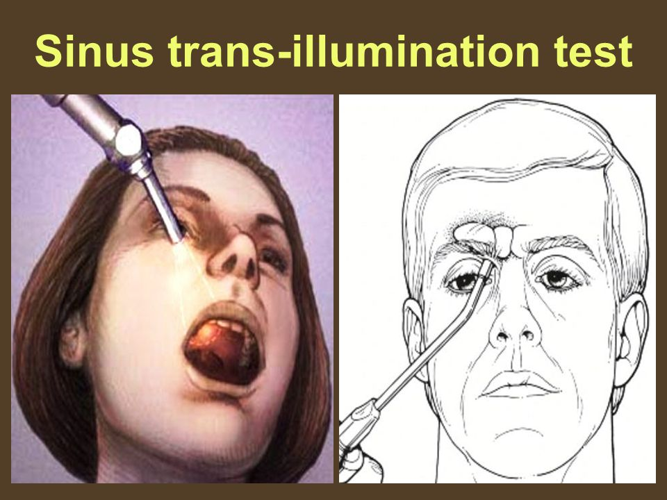Sinus trans-illumination test