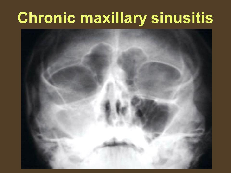 Chronic maxillary sinusitis