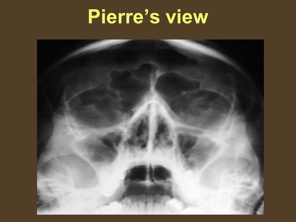 Pierre's view