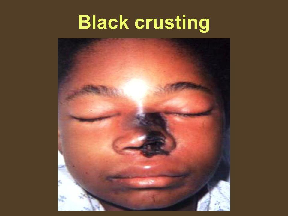 Black crusting