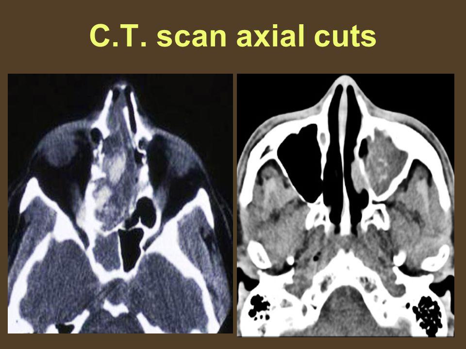 C.T. scan axial cuts