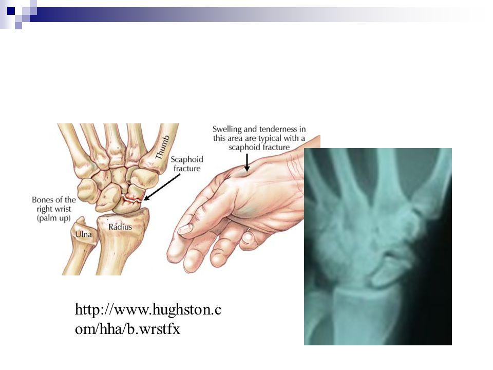 http://www.hughston.com/hha/b.wrstfx