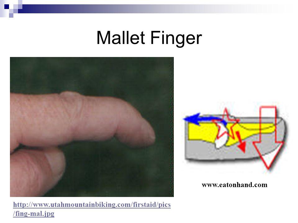 Mallet Finger www.eatonhand.com