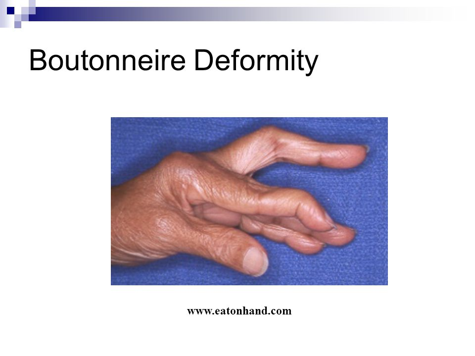 Boutonneire Deformity