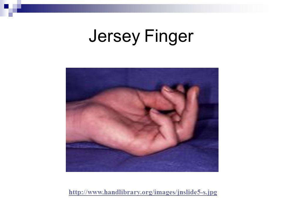 Jersey Finger http://www.handlibrary.org/images/jnslide5-s.jpg