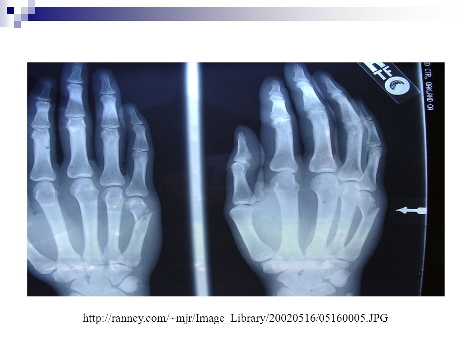 http://ranney.com/~mjr/Image_Library/20020516/05160005.JPG