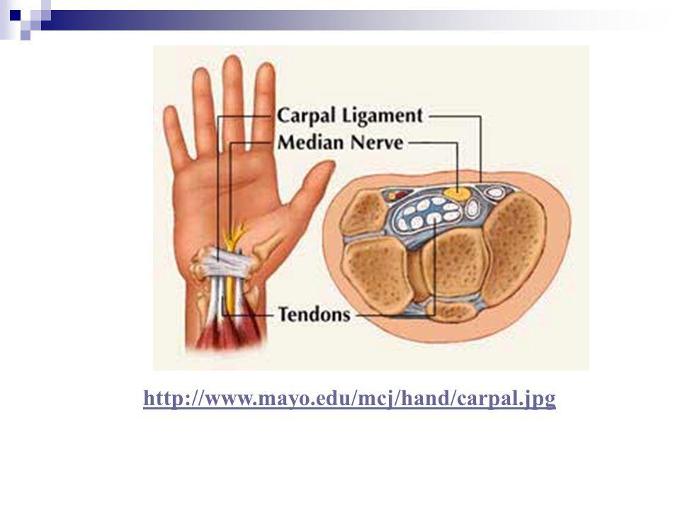 http://www.mayo.edu/mcj/hand/carpal.jpg